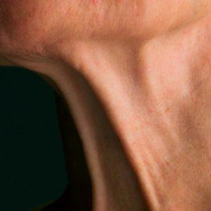 Cervicoplastia y Papada