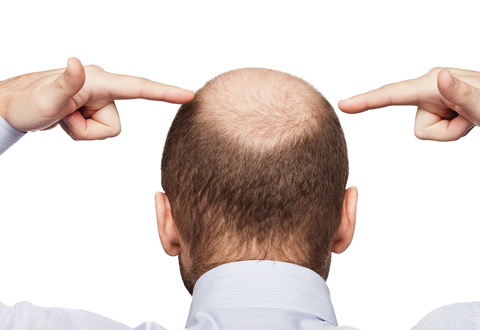 Surgery to improve baldness
