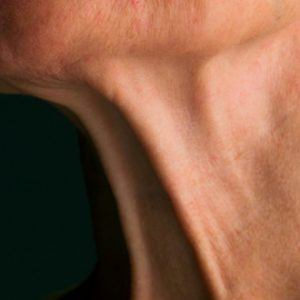 Neck lift and double chin surgery